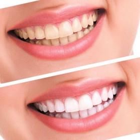 Poseida Pemutih Gigi Teeth Whitening Peroxide Dental Bleaching Oral Get Kit - Blue - 5