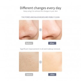 YUKUI Pembersih Wajah Elektrik LED Ultrasonic Facial Scrubber -  M22 - Gray Silver - 5