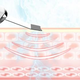 ANLAN 8801 Pembersih Wajah Elektrik Ultrasonic Facial Skin Scrubber Ion Acne Skin Cleanser - ALCPJ08-02 - White - 14
