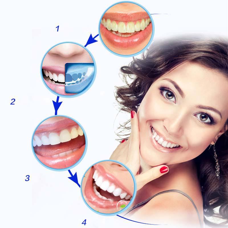 Pemutih Gigi Ultra Whitening 3d Teeth Strips 14pcs Jakartanotebook Com