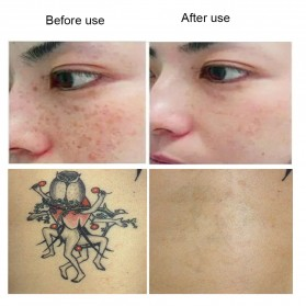 Picosecond Laser Pen Blue Light Mole Tatto Dark Spot Remover - PICO01 - White - 6