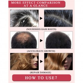 MeiYanQiong Serum Rambut Morocco Hair Growth Nut Essential Oil 20ml - 7