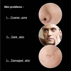 Venzen Men Refreshing Skin Care Set Cleanser Toner Cream 3 PCS - 6941 - 9