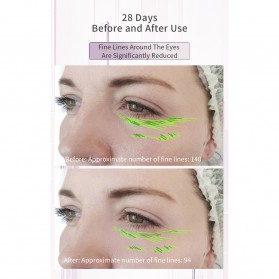 ANLAN KC-6100 Face Massager Alat Pijat Perawatan Kulit Wajah EMS RF- ALSPY01-04 - Pink - 12