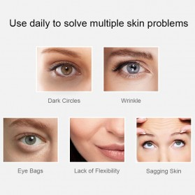 ANLAN MYY06-02 Alat Pijat Mata Electric Pen Eye Massager Anti Aging Rechargeable - ALMYY06-02 - White - 3