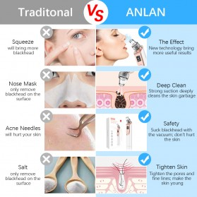 ANLAN Penghisap Komedo Vacuum Suction Skin Face Care Blackhead Pore Cleaner - ALHTY03-01R - White - 9