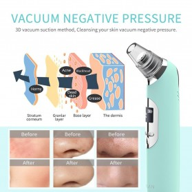 ANLAN Penghisap Komedo Vacuum Suction Skin Face Care Blackhead Pore Cleaner - ALHTY07-06 - Blue - 2
