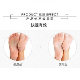 Smooth Styla Alat Pedicure Kaki Elektrik - MT-507R - White - 5